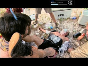 Nick elevates poor Caleb's feet while they ice his body. This will be an iconic scene in Survivor history.